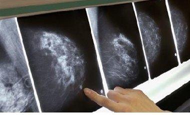 英医疗系统故障漏检数十万人 上百乳腺癌患者或